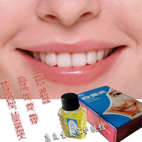 白齿灵 美白牙齿 黄牙 黑牙 烟牙茶垢亮白氟斑牙垢牙