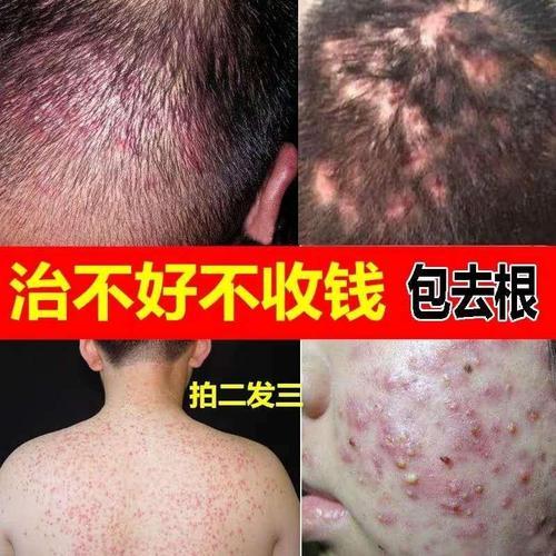 螨虫药膏除螨止痒人用头皮毛囊炎偏方头长痘脂溢性皮炎毛囊炎头发